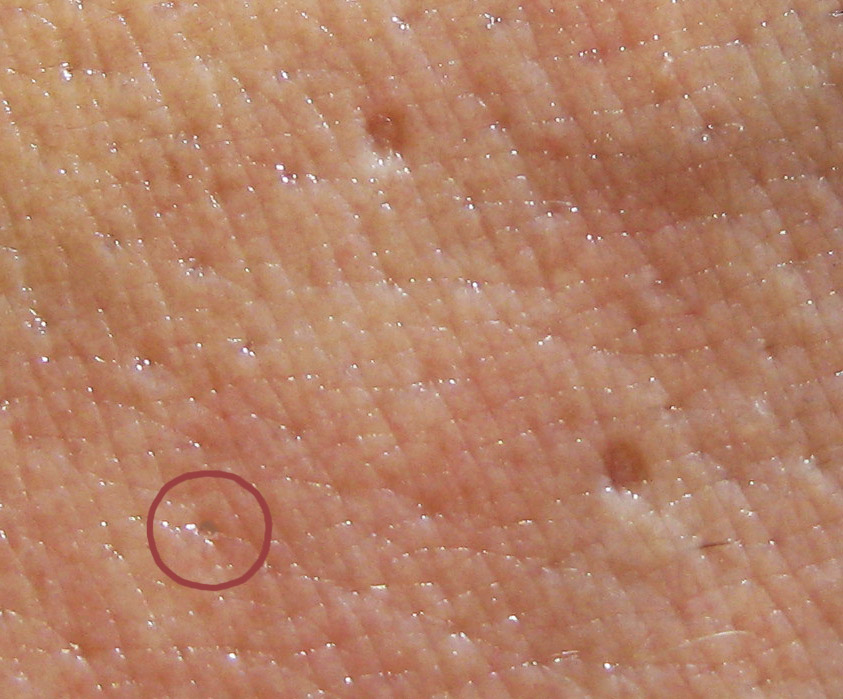 Hidden Experience Tiny Dots In A Triangle On My Left Arm