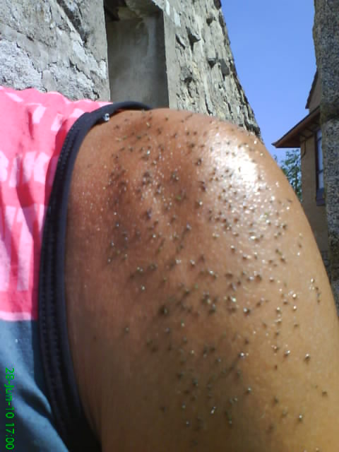 edecast-blog: Lo siento, mosquitos...