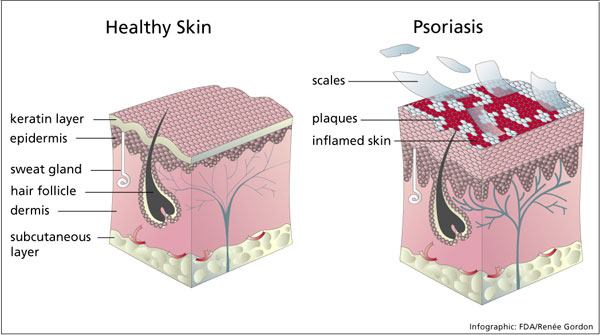 Psoriasis Treatment- Causes and Home Remedies - Stay Healthy