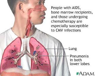 pneumonia_pada_anak