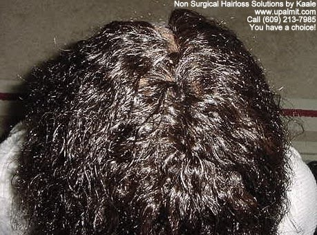 Tree Braids Non Surgical Hair Loss Solutions Before And