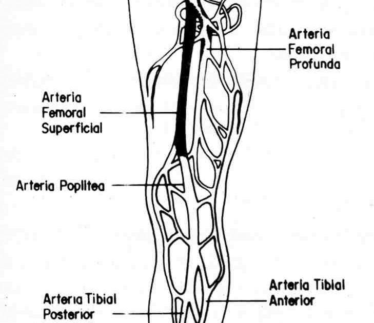 Pierna la obstruida arteria derecha en