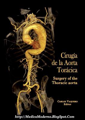 Cirugía de la aorta Torácica – Carlos Vaquero
