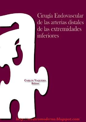 Cirugía endovascular de las arterias distales de las extremidades inferiores – Carlos Vaquero