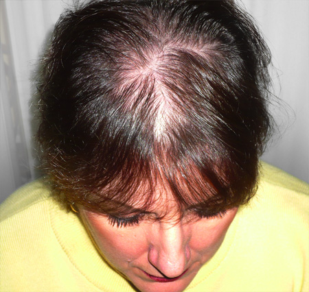 Women'S Thinning Hair Pictures 71