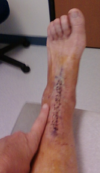 Total Ankle Replacement Surgery My Experience PICTURES