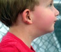 Brady's ear after surgery