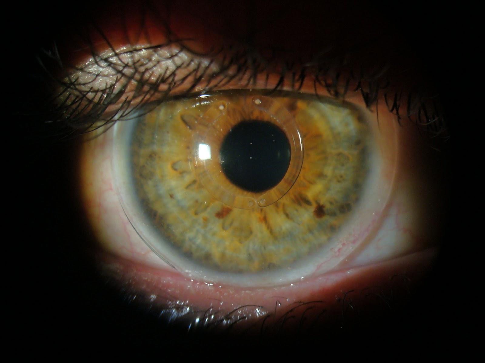 05e05b2845d6d É possível observar nas imagens acima a lente RGP Semi-Escleral Ultracone  SSB perfeitamente adaptada em um caso de ceratocone com implante de lente  ...