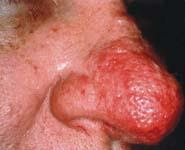 Smart Skin Care: Types of Rosacea