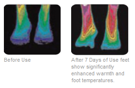 HealthiFeet Thermal Images