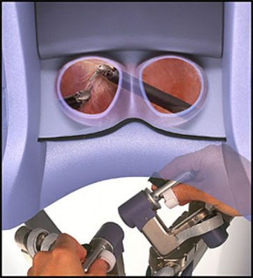 """Χειρουργοί """"ψηλαφούν"""" με τα μάτια!"""