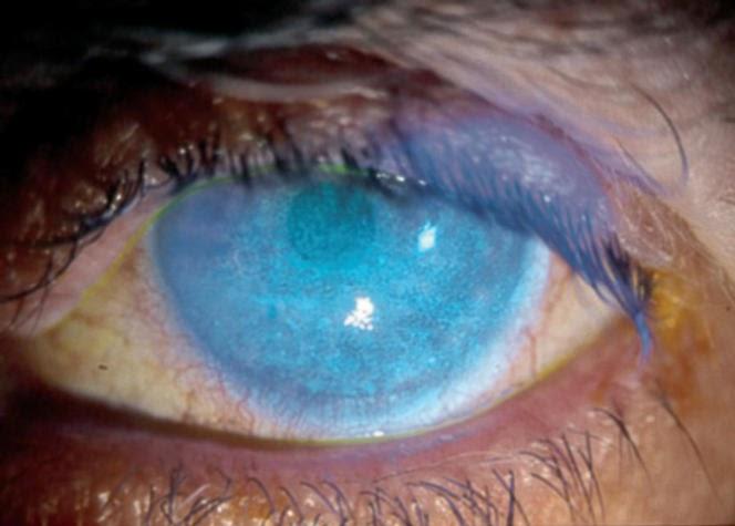Tu oftalmloga Tincin del ojo con fluorescena