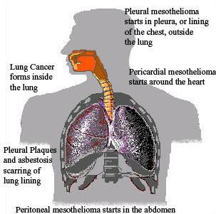 Asbestos Attorney Ohio Mesothelioma Definition