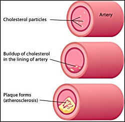 Best Natural Medicine To Lower Cholesterol