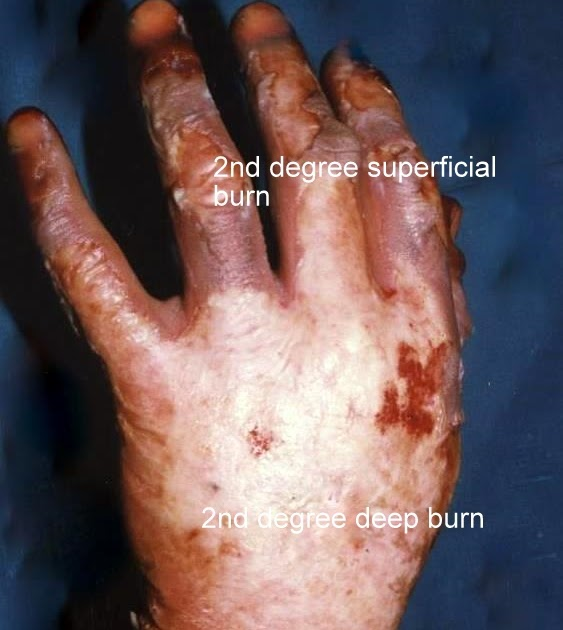Ask The Burn Surgeon +For Free+: Management Of 2nd Degree
