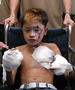 Image result for firecracker injuries philippines