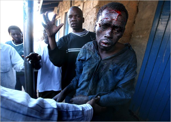 SOME OF THE KENYAN CASUALTIES!!
