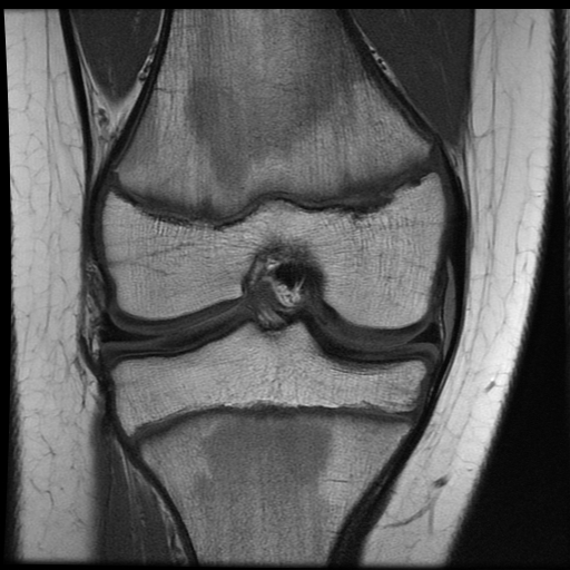 Radiology Cases Voshell S Bursitis