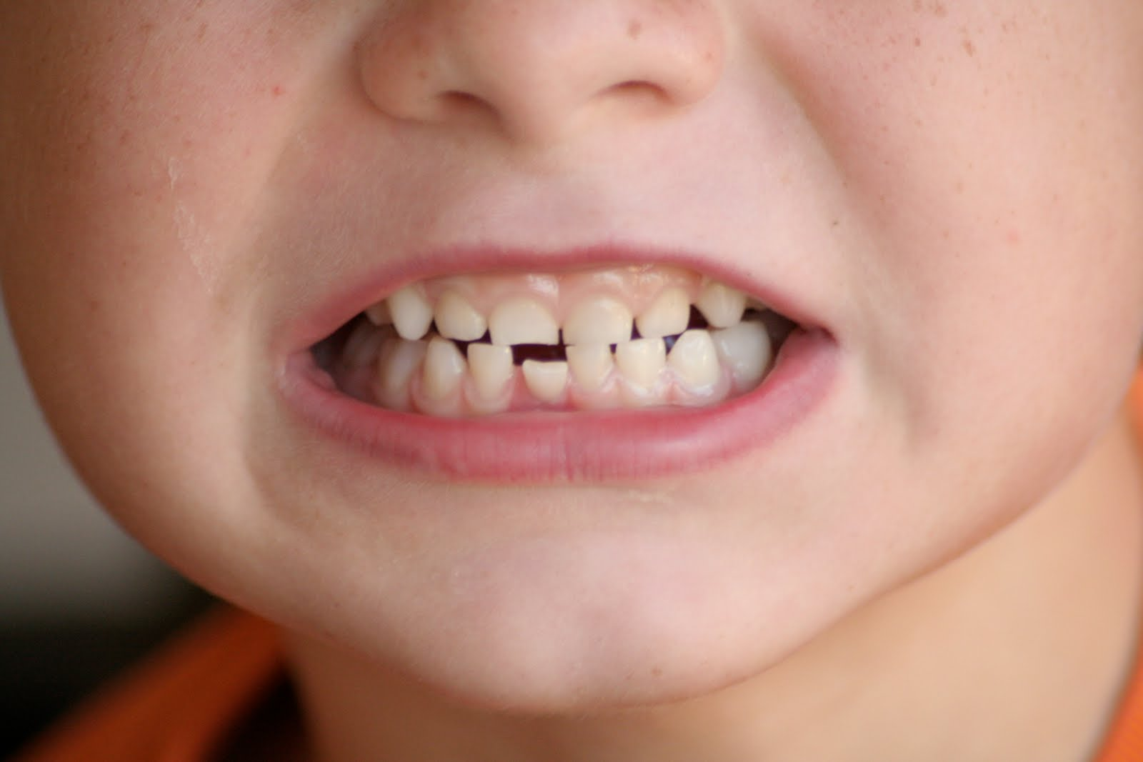 Taysoms in the News: Loose Tooth