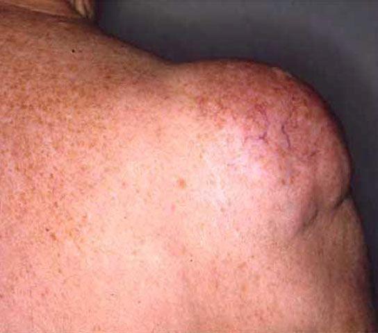 ... ... - Florianópolis: Lipoma - Tumor Benigno de Células de Gordura