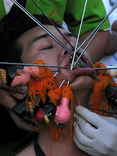 Getting impaled by multiple needles. Photo by Philip Clark.