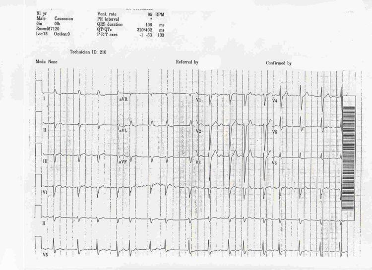Atrial Fibrillation - 2 - MDNotes