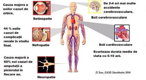 Osteoartrita a tratamentului la nivelul ?oldului comun 2