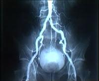 Damar İyodin Röntgeni