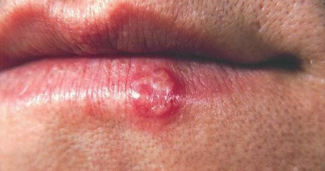 Herpes Labialis In Children