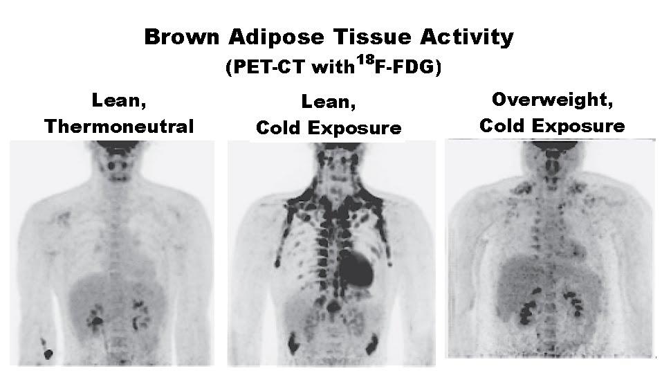 Increase Adipose Brown Fat 108
