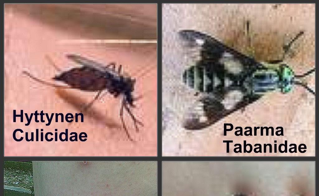 Hyttysallergia
