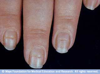 Nails and Health:What Your Nails Can Tell You