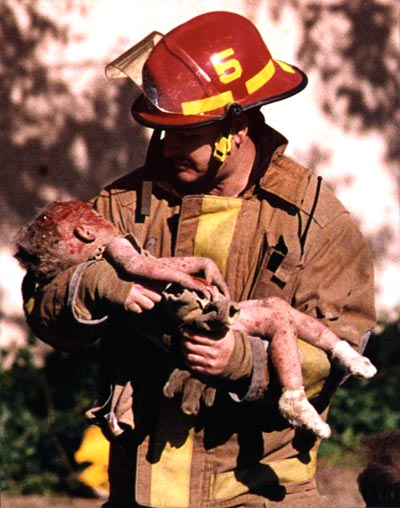 The image of firefighter Chris Fields holding the dying infant Baylee Almon won the Pulitzer Prize