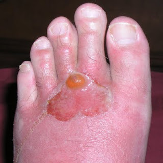 Wearing Shoes That Will Make Your Toes Blister