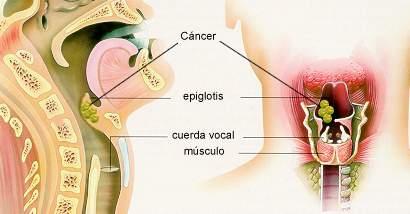 Resultado de imagen de Sexo Oral dispara los casos de cáncer de garganta entre los jóvenes