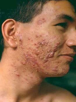 El acné la cosmética natural el tratamiento