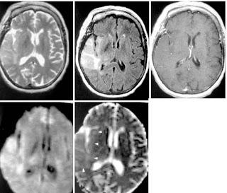 RadiologySpirit: 2010-06-13