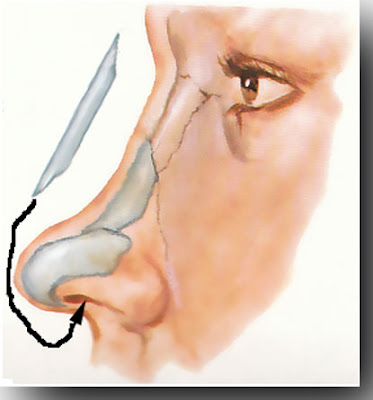 nasal bridge implant
