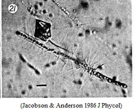 Skeptic Wonder: Sunday Protist - Dinoflagellate eats