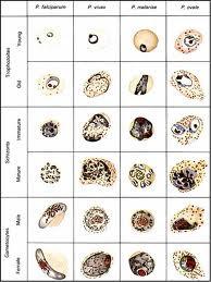 a malária plazmodium ciklusának stádiumai Giardiasis jelei gyermekeknél, hogyan lehet azonosítani