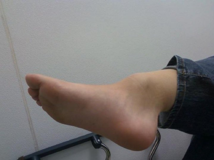 Signs of Broken Ankle Vs Sprained Ankle