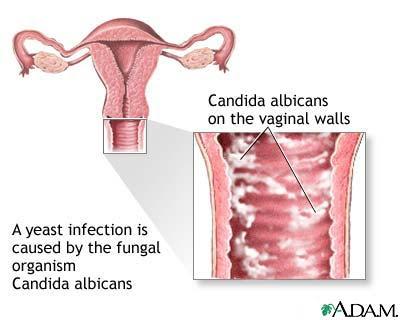 remedios para el dolor vulvar