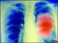 vacuna contra el cancer de pulmón
