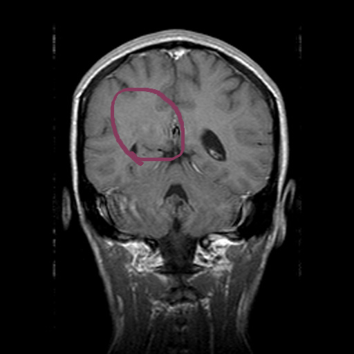 Pictures of Brain Tumor Mri Without Contrast - #rock-cafe