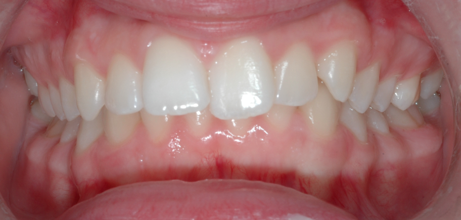 Orthodontic Corner: Design and Management of Twin Blocks