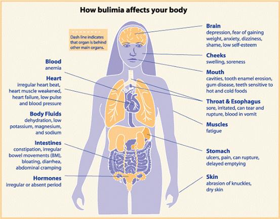 What Does Bulimia Do to Your Body?