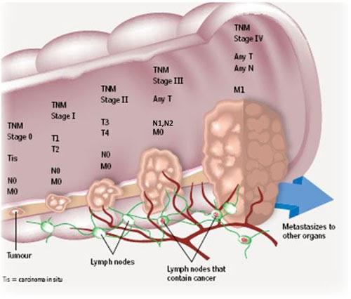 Kemampuan Tubuh Bertahan Pada Kanker Kolon ~ INILAH INFO
