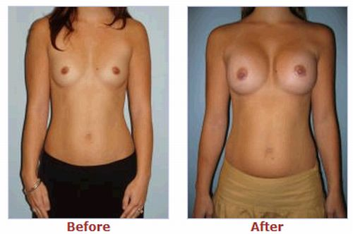 Amusing Pics Girls before and after plastic surgery
