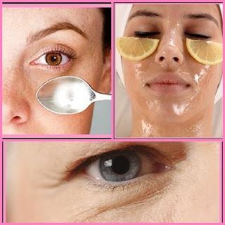 Los procedimientos cosméticos que arreglan las ojeras