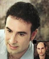 La caída del pelo, su prevención y tratamiento
